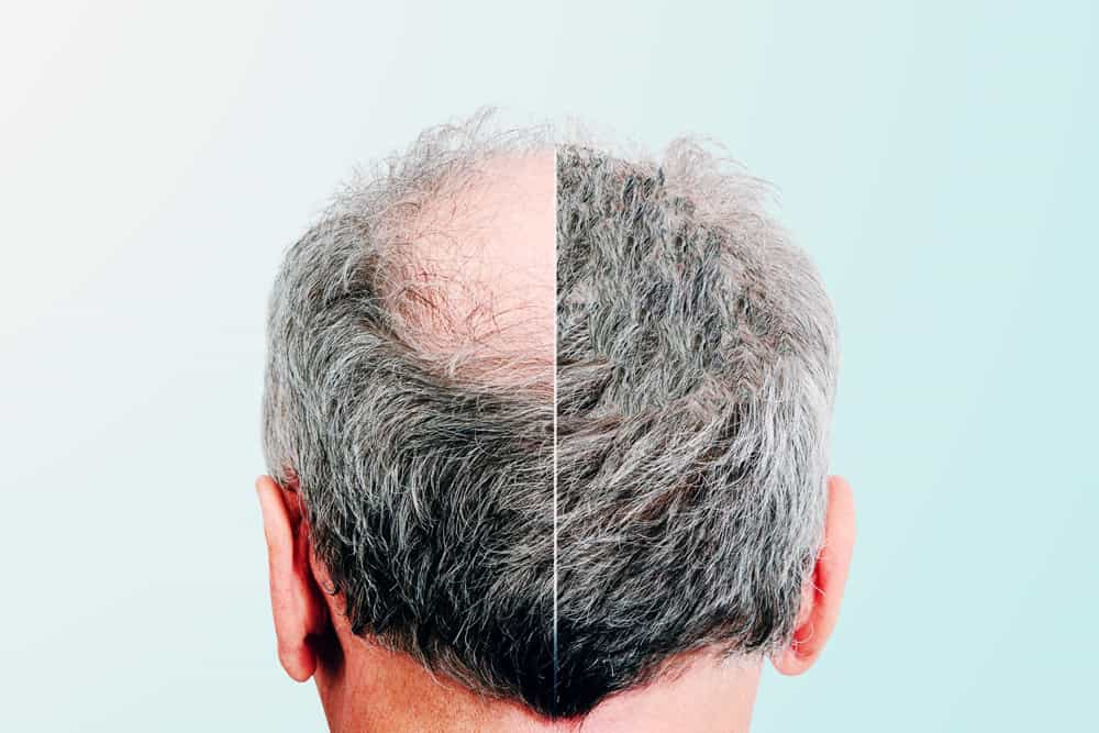 What are the types of hair loss?