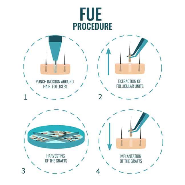 Follicular Unit Extraction (FUE) procedure