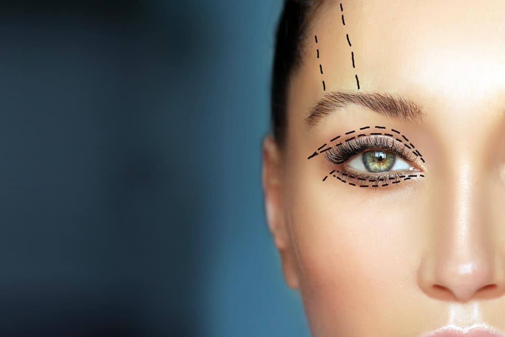 Are there any non-surgical alternatives to Ptosis correction?