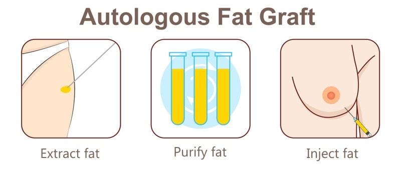 Autologous Fat Graft
