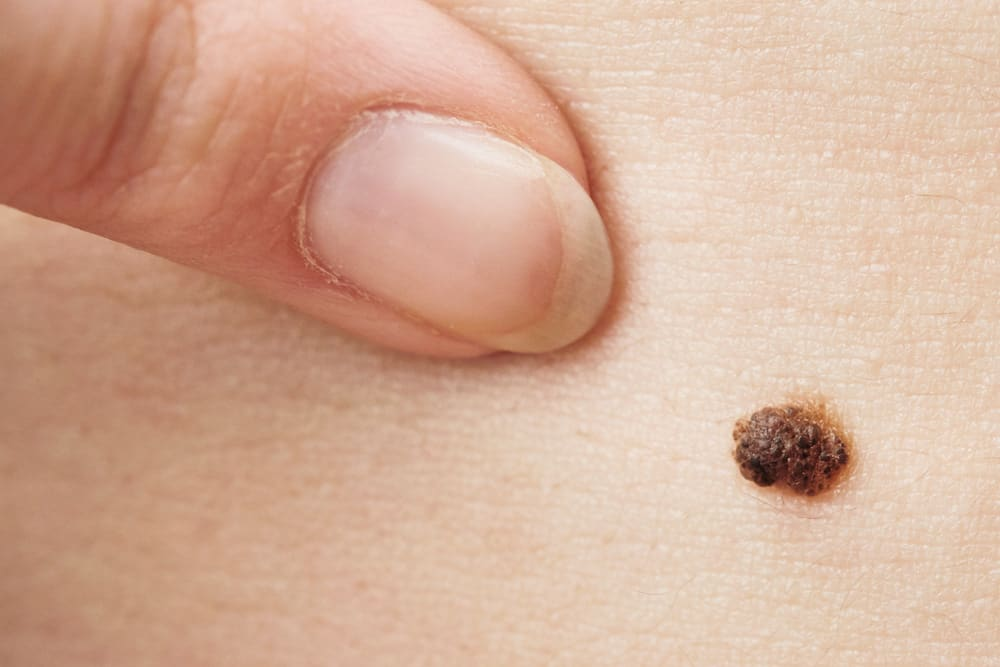 How to Spot Skin Cancer and What to Do About It