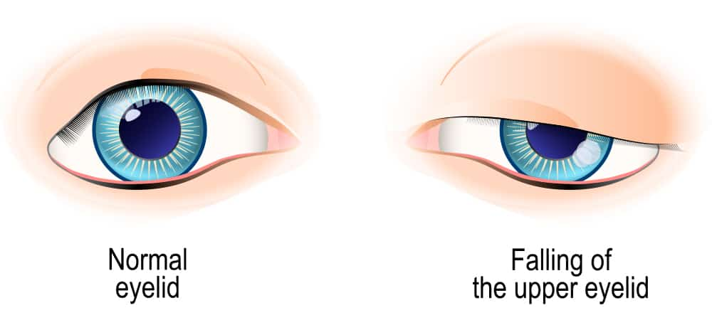 Why Should Someone Correct Ptosis