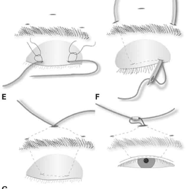 Droopy Eyelid Correction