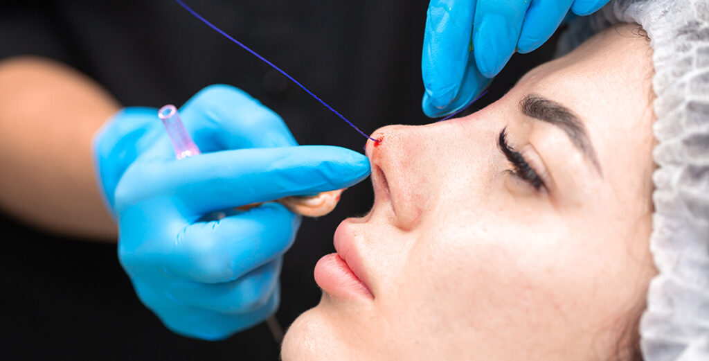 What is a Nose Thread Lift?