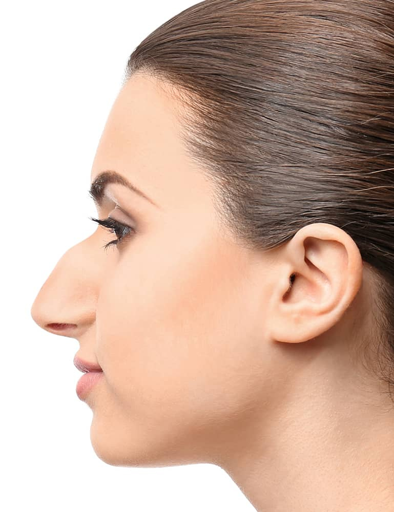 Hump Nose