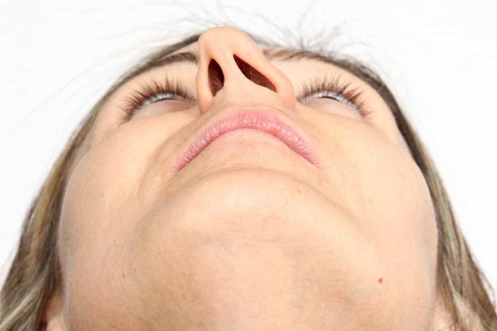Crooked Nose or Deviated Septum