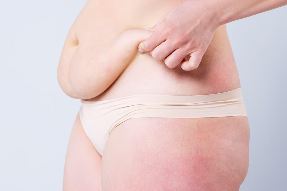 Advantages of a Tummy Tuck