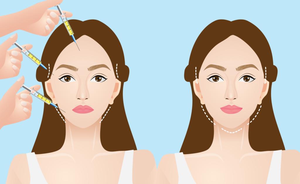 Facial injection