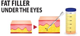 Fat filler under the eyes