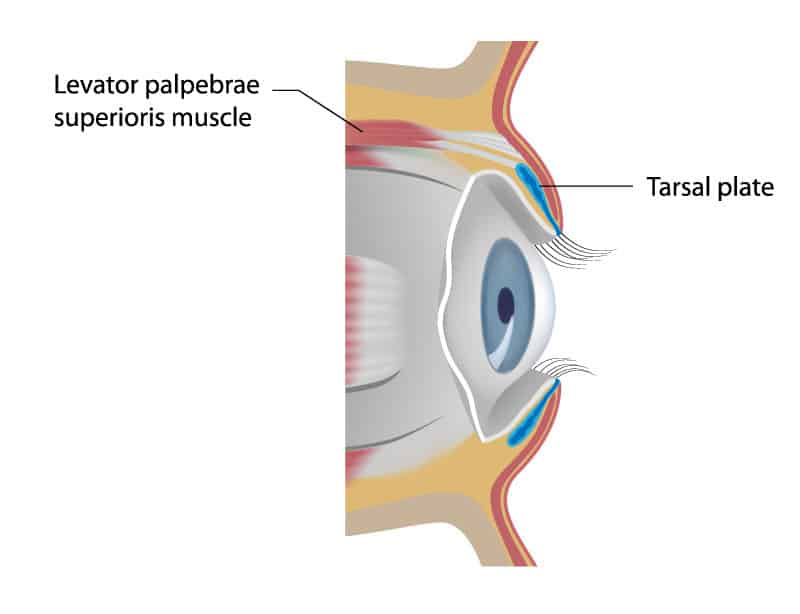 Everything You Need to Know About Ptosis Correction