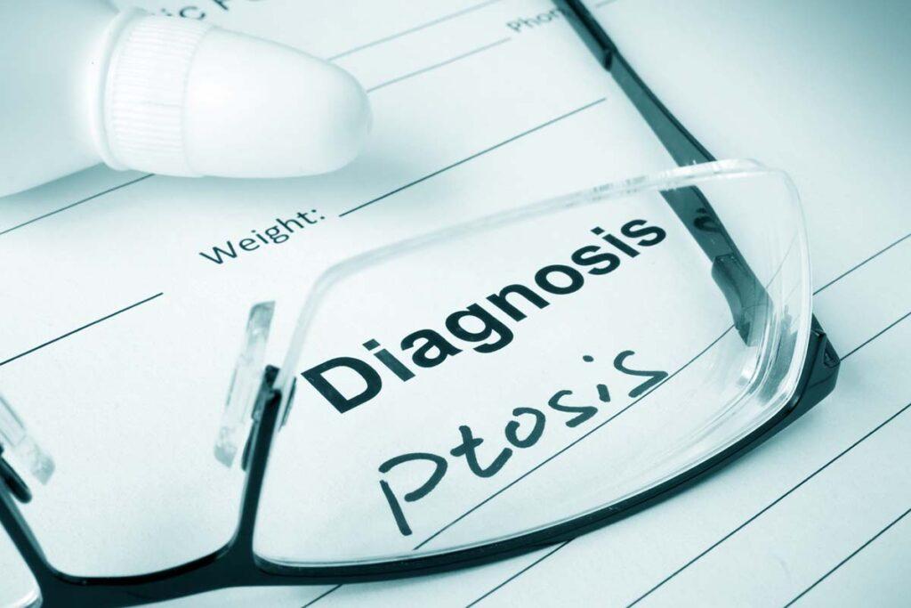 Diagnosing Ptosis
