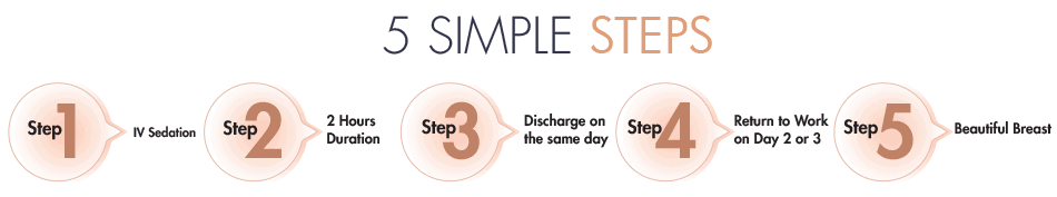 Breast Augmentation - 5 Simple Steps