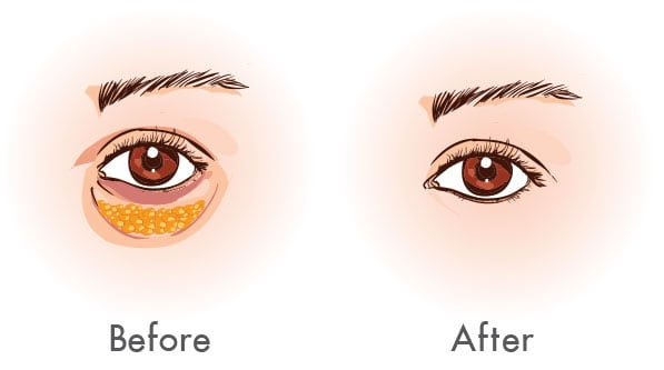 Before and after Eye bag Removal