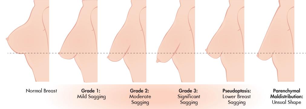 Ptosis Grade